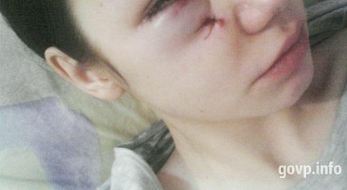НаУрале помощник обвинителя ранил изтравмата молодого человека идевушку