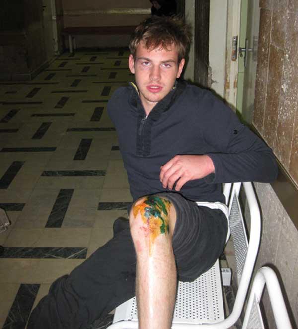 Новый Регион: В Москве полицейские всю ночь пытали задержанного студента, выбивая показания (ФОТО)